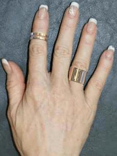Кольца Healthy Hands руки
